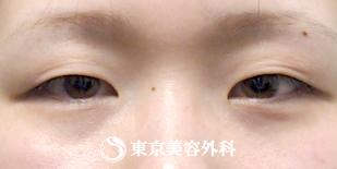 東京美容外科の目・二重整形の症例写真[ビフォー]