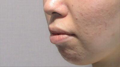 顎のヒアルロン酸注入+顎ボトックスで横顔美人の症例写真[ビフォー]