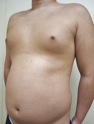 タウン形成外科クリニックの脂肪吸引の症例写真[ビフォー]