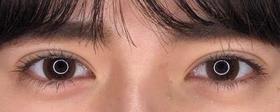 【クイックコスメティークダブル】目元症例数年間2000件以上の症例写真