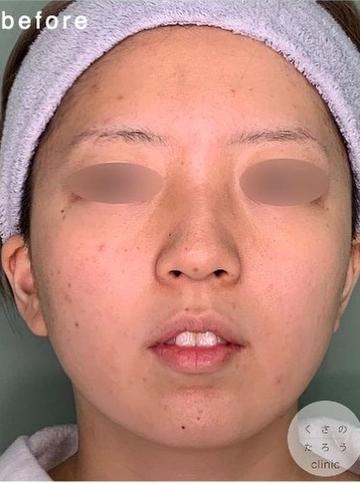 くさのたろうクリニックの鼻の整形の症例写真[ビフォー]