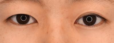 グランドループ法(二重埋没法)術後1か月 女性 20代の症例写真[ビフォー]