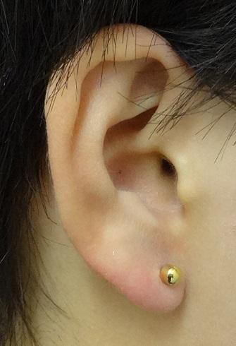 TCB 東京中央美容外科のピアス穴あけの症例写真