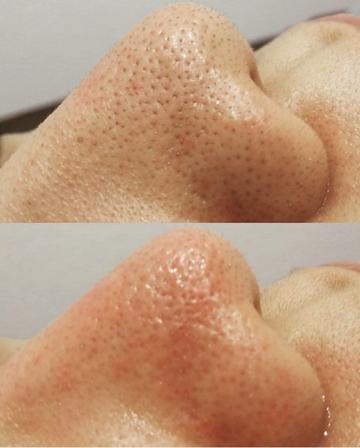 さっぽろ美容クリニックのシミ治療(シミ取り)・肝斑・毛穴治療の症例写真