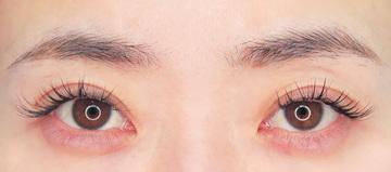 湘南美容クリニック武蔵小杉院の目元の整形、くま治療の症例写真[アフター]