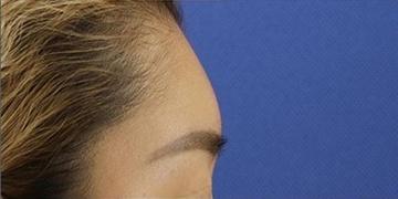 銀座長瀬クリニックの顔の整形(輪郭・顎の整形)の症例写真[アフター]