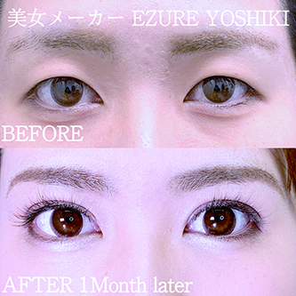 湘南美容クリニック 赤羽院の目・二重の整形の症例写真