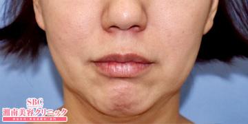湘南美容クリニック奈良院の顔のしわ・たるみの整形(リフトアップ手術)の症例写真[ビフォー]