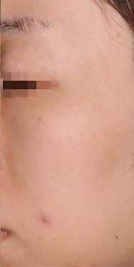 SELECT CLINIC(セレクトクリニック)のシミ取り・肝斑・毛穴治療の症例写真[アフター]