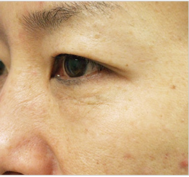 オザキクリニックLUXE新宿のアンチエイジング・美容点滴の症例写真[ビフォー]