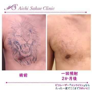 のタトゥー除去(刺青・入れ墨を消す治療)の症例写真
