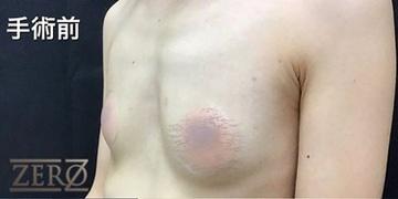 東京ゼロクリニック銀座の豊胸・胸の整形の症例写真[ビフォー]