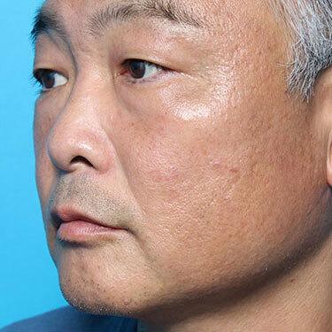 隆鼻術ほかの症例写真[ビフォー]