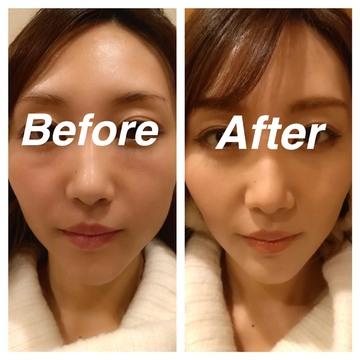 フォーシーズンズ美容皮膚科クリニックのアンチエイジング・美容点滴の症例写真