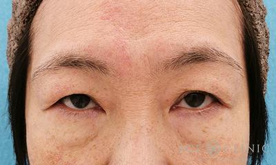 眉毛下切開法による眼瞼下垂治療の症例写真[ビフォー]
