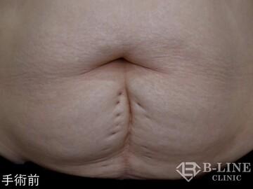 B-LINE CLINIC (ビーラインクリニック)の傷跡治療、ケロイドの症例写真[ビフォー]