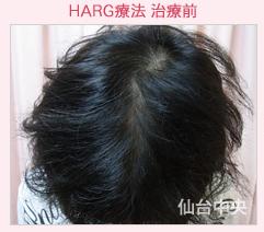 仙台中央クリニックの薄毛治療の症例写真[ビフォー]