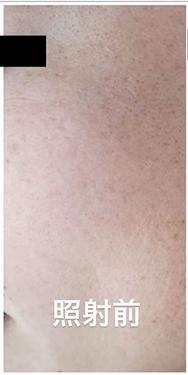 銀座長瀬クリニック 大阪院のシミ取り・肝斑・毛穴治療の症例写真[ビフォー]