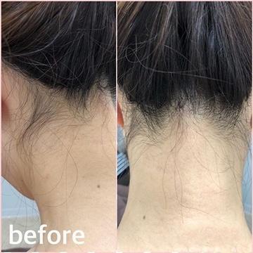 ゆきおかクリニックの医療レーザー脱毛の症例写真[ビフォー]