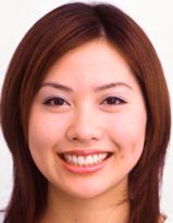 共立美容外科・歯科の審美歯科の症例写真[アフター]