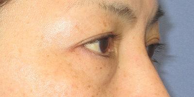 目の下の切らないたるみ取りの症例写真[ビフォー]