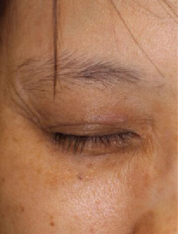 すなおクリニックのホクロ除去・あざ治療・イボ治療の症例写真[アフター]
