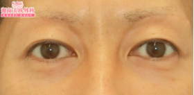 2ヶ月【若返り】眉下切開法の症例写真[アフター]