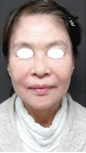 ジョウクリニックの顔のしわ・たるみの整形の症例写真[アフター]