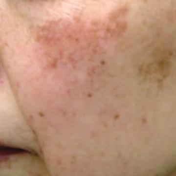 いしい形成クリニックのシミ治療(シミ取り)・肝斑・毛穴治療の症例写真[ビフォー]