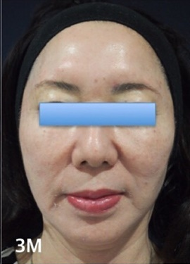 S.T style クリニック (エスティスタイルクリニック)のシミ治療(シミ取り)・肝斑・毛穴治療の症例写真[アフター]