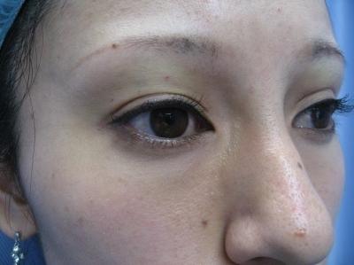 上眼瞼くぼみヒアルロン酸注入の症例写真[アフター]