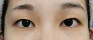 エースクリニックグループの目・二重整形の症例写真[ビフォー]