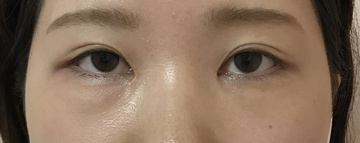 N クリニックの目・二重整形の症例写真[アフター]