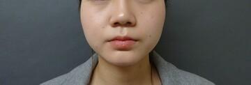 TCB東京中央美容外科のシワ・たるみ(照射系リフトアップ治療)の症例写真[アフター]