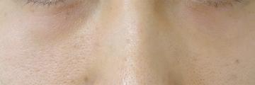 ドーズ美容外科の目元の整形、くま治療の症例写真[アフター]