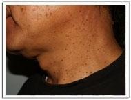 恵聖会クリニックのホクロ除去・あざ治療・イボ治療の症例写真[ビフォー]