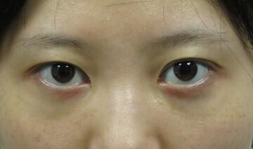 東京美容外科 仙台院の目・二重整形の症例写真[ビフォー]