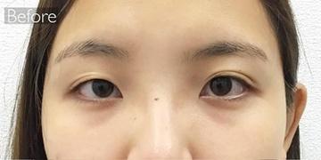 東京ゼロクリニック銀座の目・二重整形の症例写真[ビフォー]