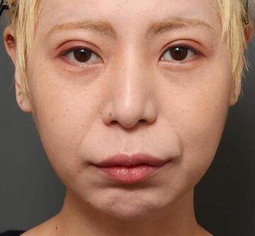 オザキクリニックの口元・唇の整形の症例写真[ビフォー]