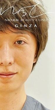 Natural Beauty Clinic GINZA(ナチュラルビューティークリニックギンザ)のシワ・たるみ(照射系リフトアップ治療)の症例写真[ビフォー]