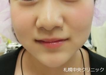 の顔の整形(輪郭・顎の整形)の症例写真[アフター]