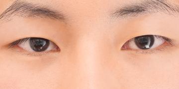 東京イセアクリニック 銀座院の目・二重整形の症例写真[ビフォー]