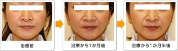 ワイズスキンケアクリニックの顔のしわ・たるみの整形の症例写真