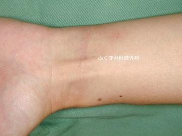 ふくずみ皮フ科形成外科の傷跡治療、ケロイドの症例写真[アフター]