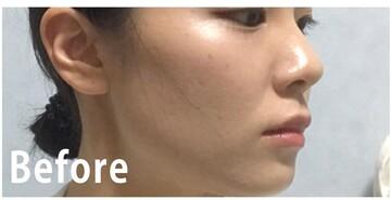 フォーシーズンズ美容皮膚科クリニックのアンチエイジング・美容点滴の症例写真[ビフォー]
