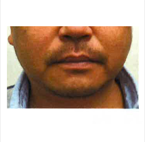 サクラアズクリニック・グループの顔の整形(輪郭・顎の整形)の症例写真[ビフォー]