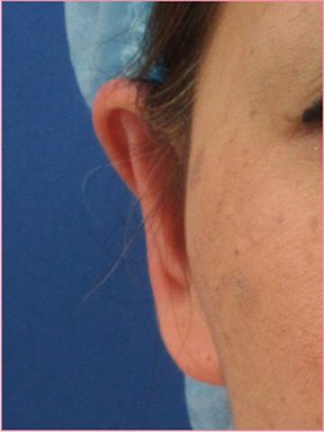 城本クリニックの耳の整形の症例写真[アフター]