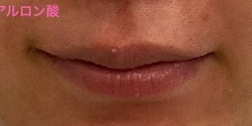 ロレシー美容クリニック 心斎橋駅前院の口元・唇の整形の症例写真[ビフォー]