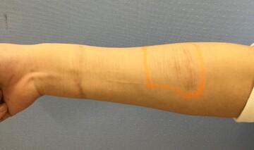 福岡博多駅前通中央クリニックの傷跡治療、ケロイドの症例写真[ビフォー]