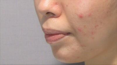 顎のヒアルロン酸注入+顎ボトックスで横顔美人の症例写真[アフター]
